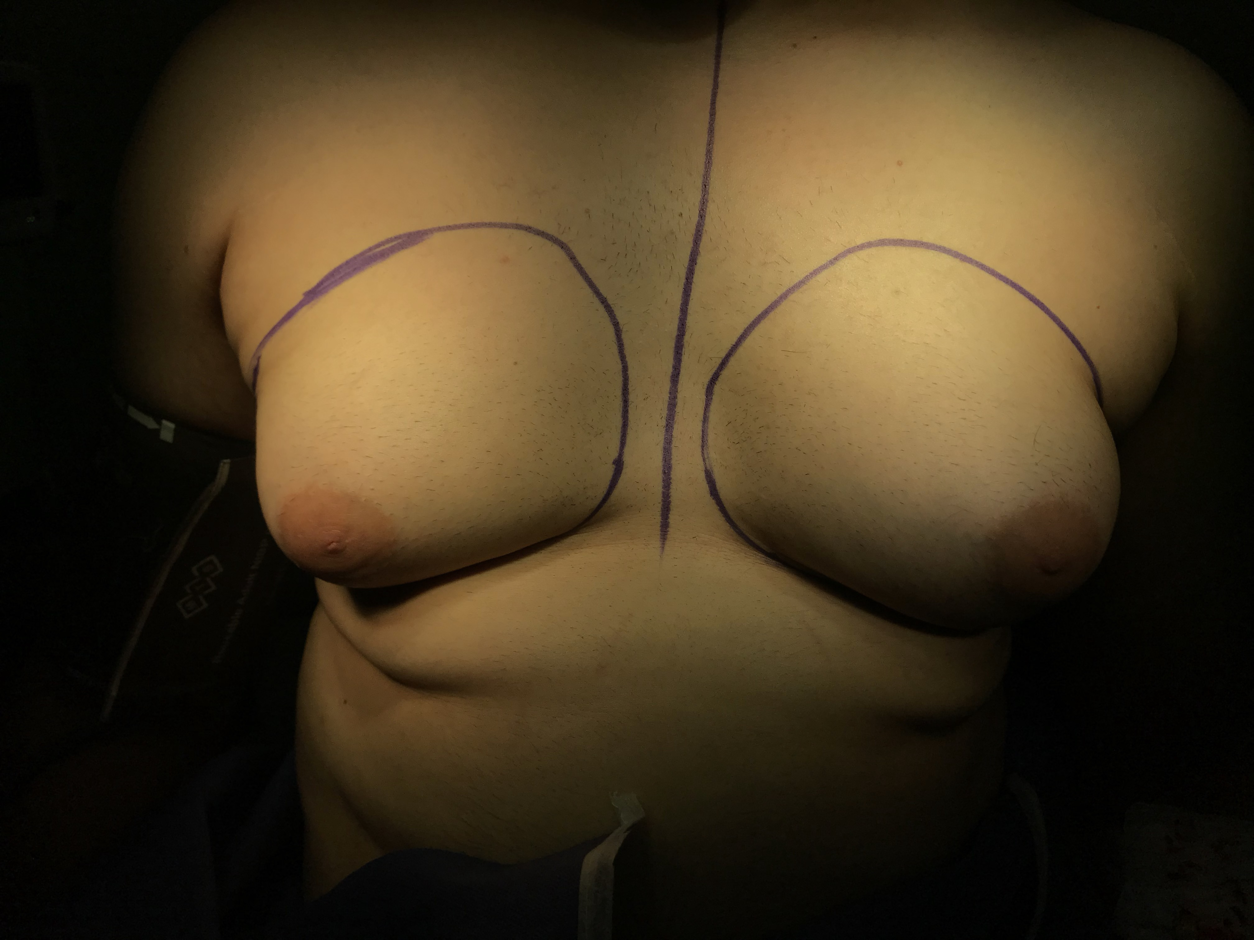 ِGynecomasty surgery in Iran